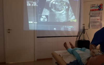Surrogate's pregnancy: Ultrasound